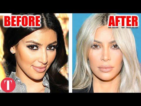 Kim Kardashian Denies Nose Job Blaming Pregnancy For Face Changes Mp3
