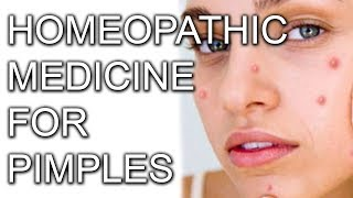 Homeopathic Medicines for Acne [Hindi] | Homeopathy Treatment for Pimples & BlackHead | Acne ka ilag