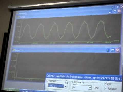ELECTROMIOGRAFIA 2.AVI