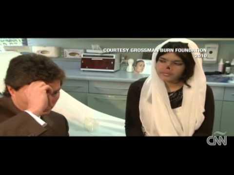 Aesha, una mujer afgana, se adapta a su nuevo rostro