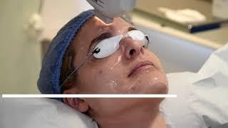 El láser IPL en el tratamiento de manchas