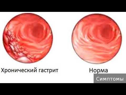 Хронический атрофический гастрит. Как лечить хронический атрофический гастрит.
