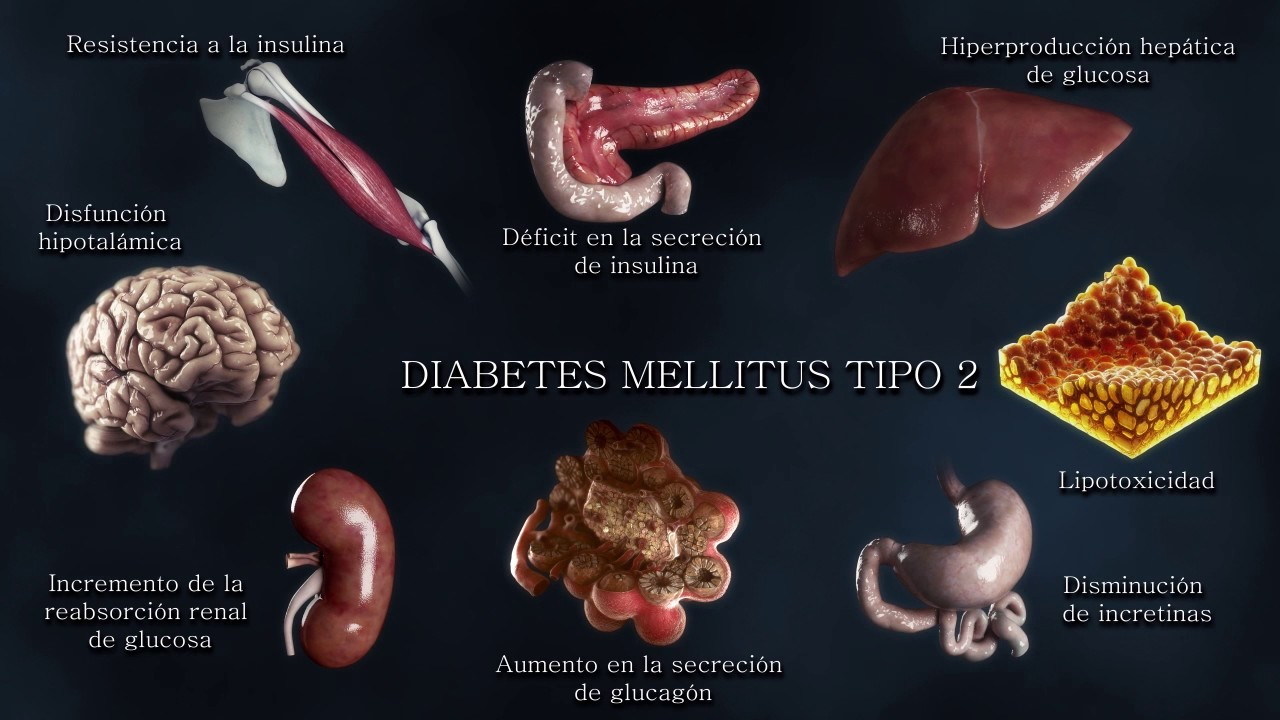 Etiopatogenia de la Diabetes tipo2: de la triada clásica
