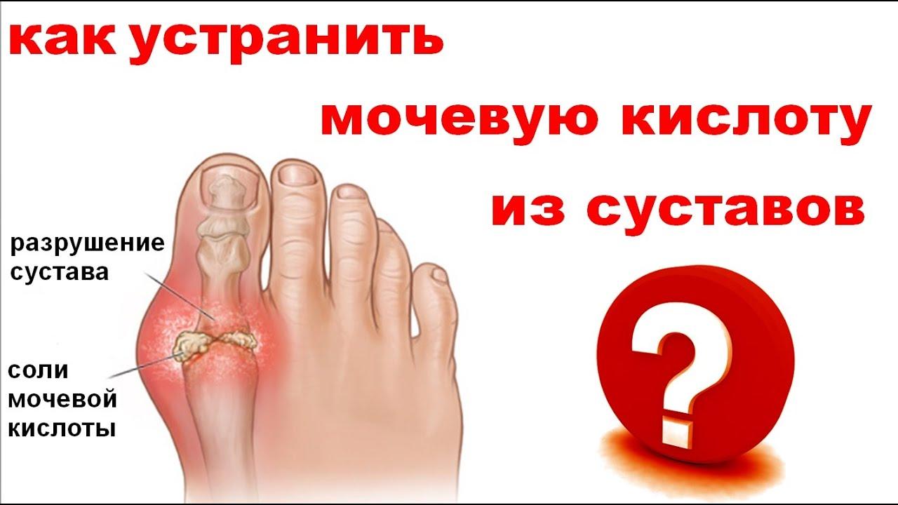 Корень проблем деформирующего остеоартроза (ДОА) коленного сустава