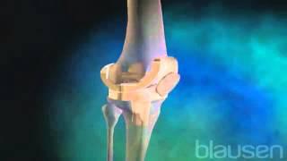 Коленный сустав  Операция по замене коленного сустава