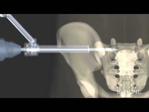 right sacroiliac joint steroid injection