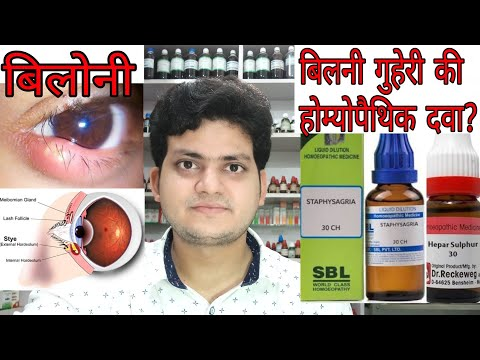 Stye!बिलोनी! Homeopathic medicine for stye ?? explain