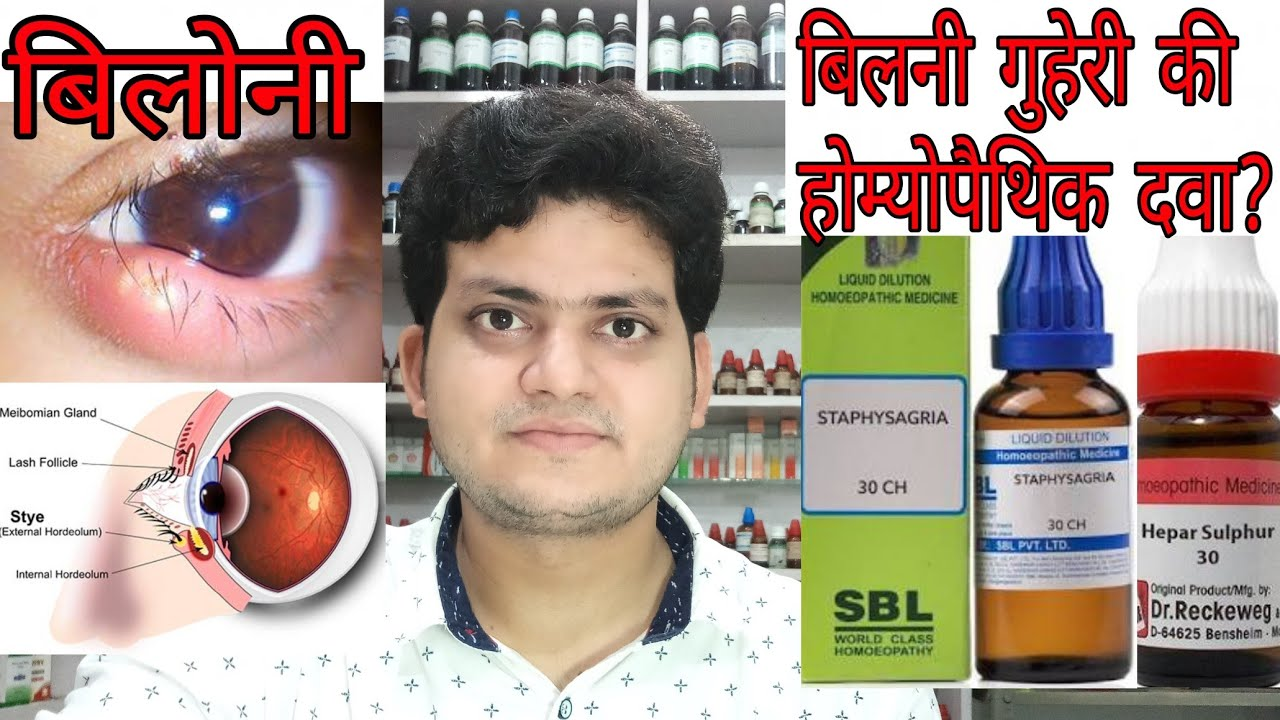Stye!बिलोनी! Homeopathic medicine for stye ?? explain!