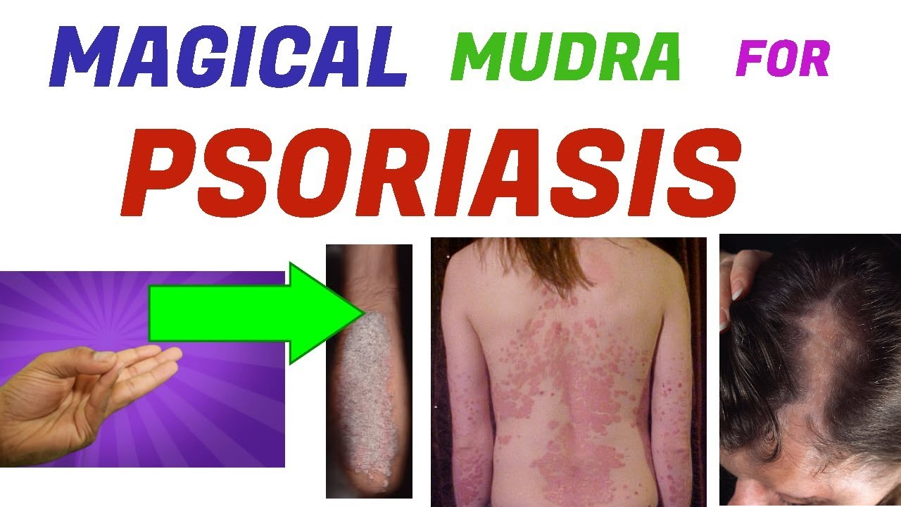 can psoriasis be cured by yoga
