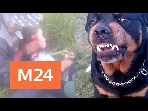 Одиннадцатилетняя девочка попала в больницу после нападения собаки - Москва 24