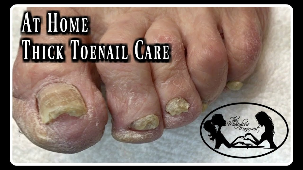 Pedicure At Home Elderly Toenails Cutting Thick Toenails and Nail ...