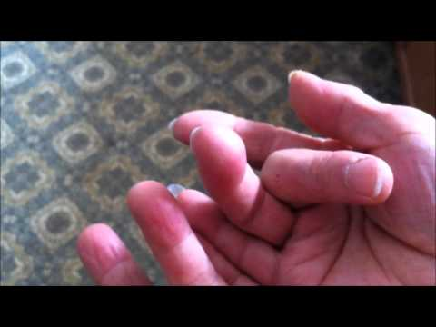Effects of Frostbite