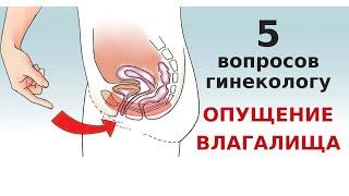 5 вопросов гинекологу при опущении стенок влагалища