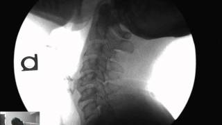 mm retrolisthesis Retrolisthesis is a specific type of vertebral misalignment in which one or more vertebral bones move rearward, out of alignment with the remainder of the spine.
