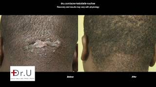 AKN Surgical Scar Revision - Best AKN Head Bump Clinic Los Angeles