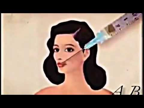 Copy of Plastic Surgery Animation