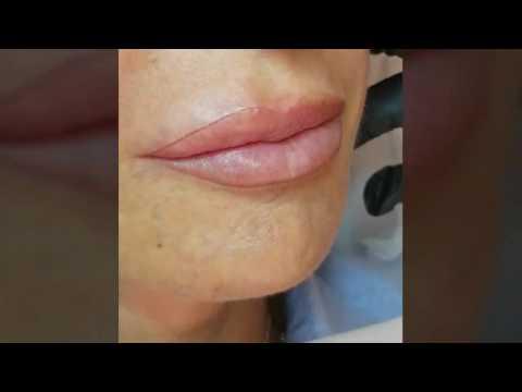 Tatuaggio labbra e herpes dating
