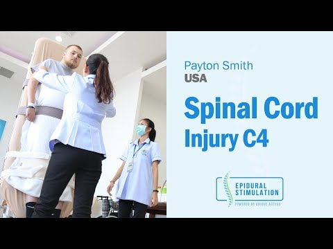 C4 SCI Patient from USA Payton Is Determined to Walk Again after the Epidural Stimulation Surgery