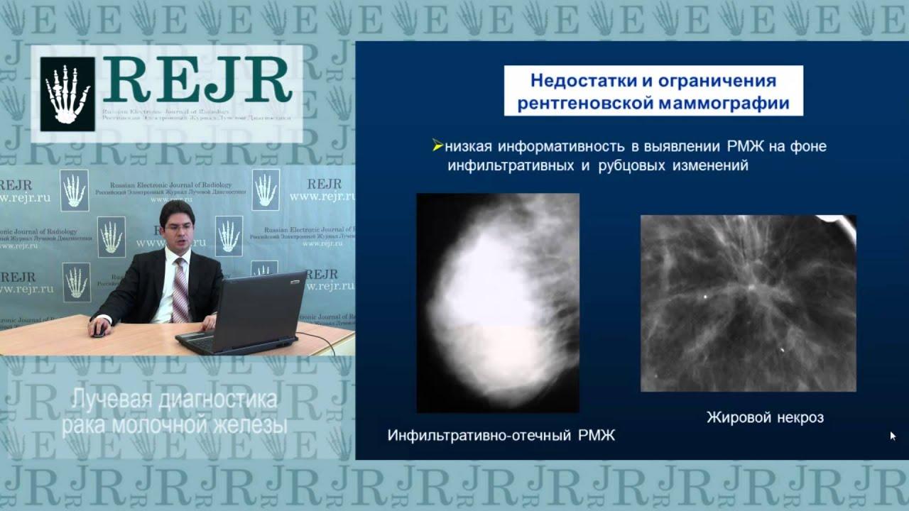 Лучевая диагностика рака молочной железы