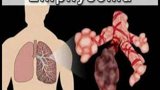 Understanding Chronic Obstructive Pulmonary Disease (COPD#1)