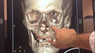 facial fractures 3D reconstruction