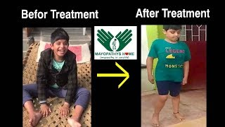 successful treatment of muscular dystrophy in india | best hospital for muscular dystrophy in india