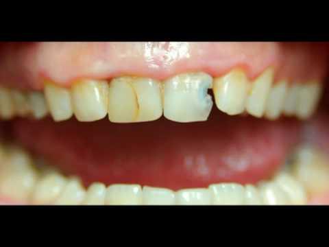 Dental composite restoration - YouTube