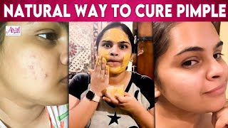 How to remove pimple – Vidyu Raman | Weight Loss, Workout, Pimples