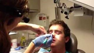 ian s nasal packing removal