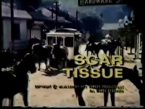 Hec Ramsey  Season 2, Episode 4 : Scar Tissue