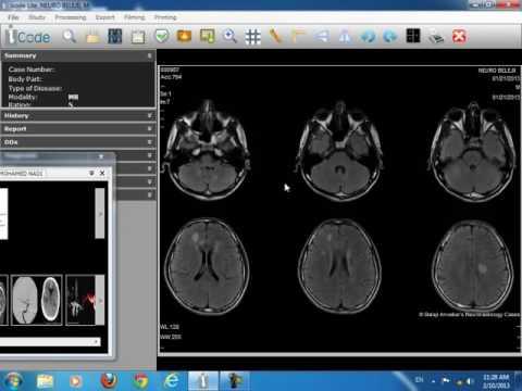 Film reading of brain imaging Dr Hassan El kiki Part 2