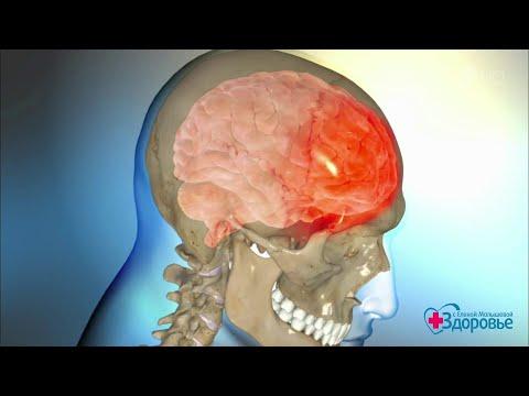 После ушиба голова болит голова