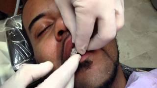 Diamond Dental Crowns