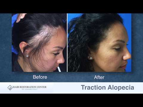 Traction Alopecia Case Study by Scott Boden, MD, Hartford, Connecticut