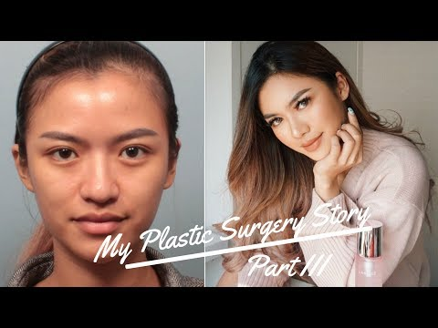 MY PLASTIC SURGERY STORY (PART 3) END RESULT! (ENG SUB) BAHASA INDONESIA