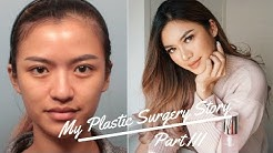 MY PLASTIC SURGERY STORY (PART 3) END RESULT! | BEAUTIQUE KOREA | BANOBAGI CLINIC | BAHASA INDONESIA