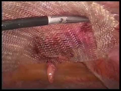 "Umbilical hernia repair. Laparoscopic,  ""unedited"" by  Prof Yerdel"