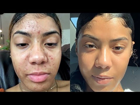 HOW I GOT RID OF MY ACNE IN A MONTH!