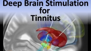 🕱 Deep Brain Stimulation (DBS) 🕱 for Tinnitus Mp3