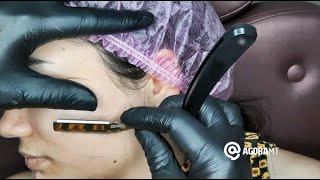 Conheça a técnica de rejuvenescimento facial dermaplaning