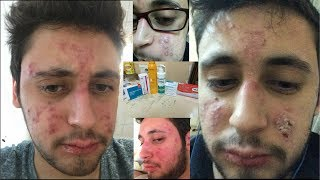 My Accutane Journey (Before-After)