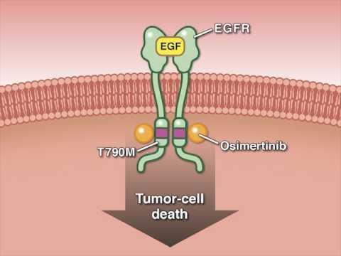 Osimertinib In Advanced Non–Small-Cell Lung Cancer