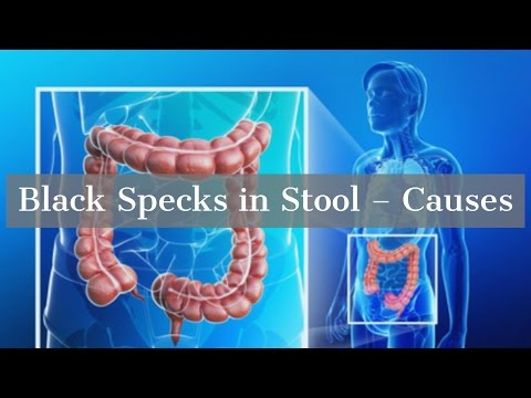Black Specks in Stool - Causes