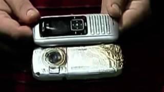 Cell Phone Burn Victim