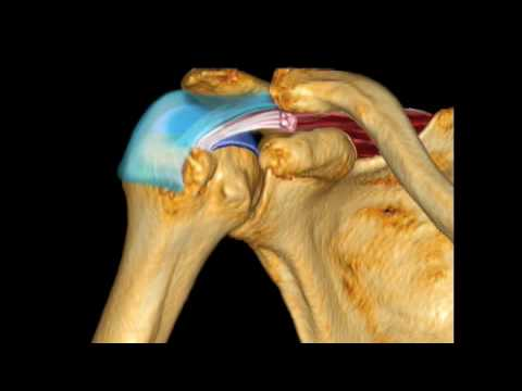 Supraspinatus Pathology