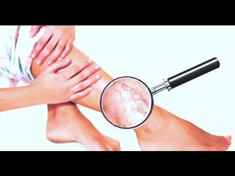 Лечение вен и варикоза: звездочки на ногах