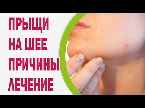 Причины появления прыщей на шее и их лечение