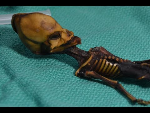 This Weird Skeleton Is Definitely Not an Alien