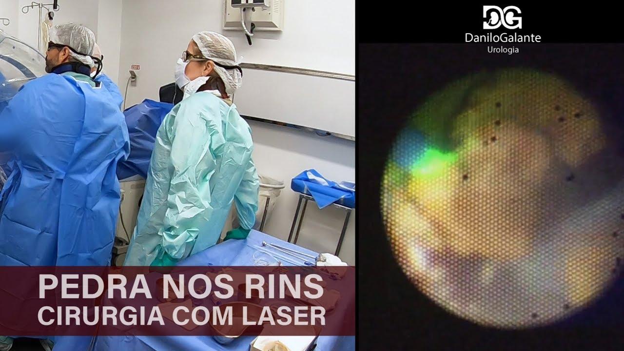f78bca580 Pedras nos rins | Cirurgia a laser - YouTube