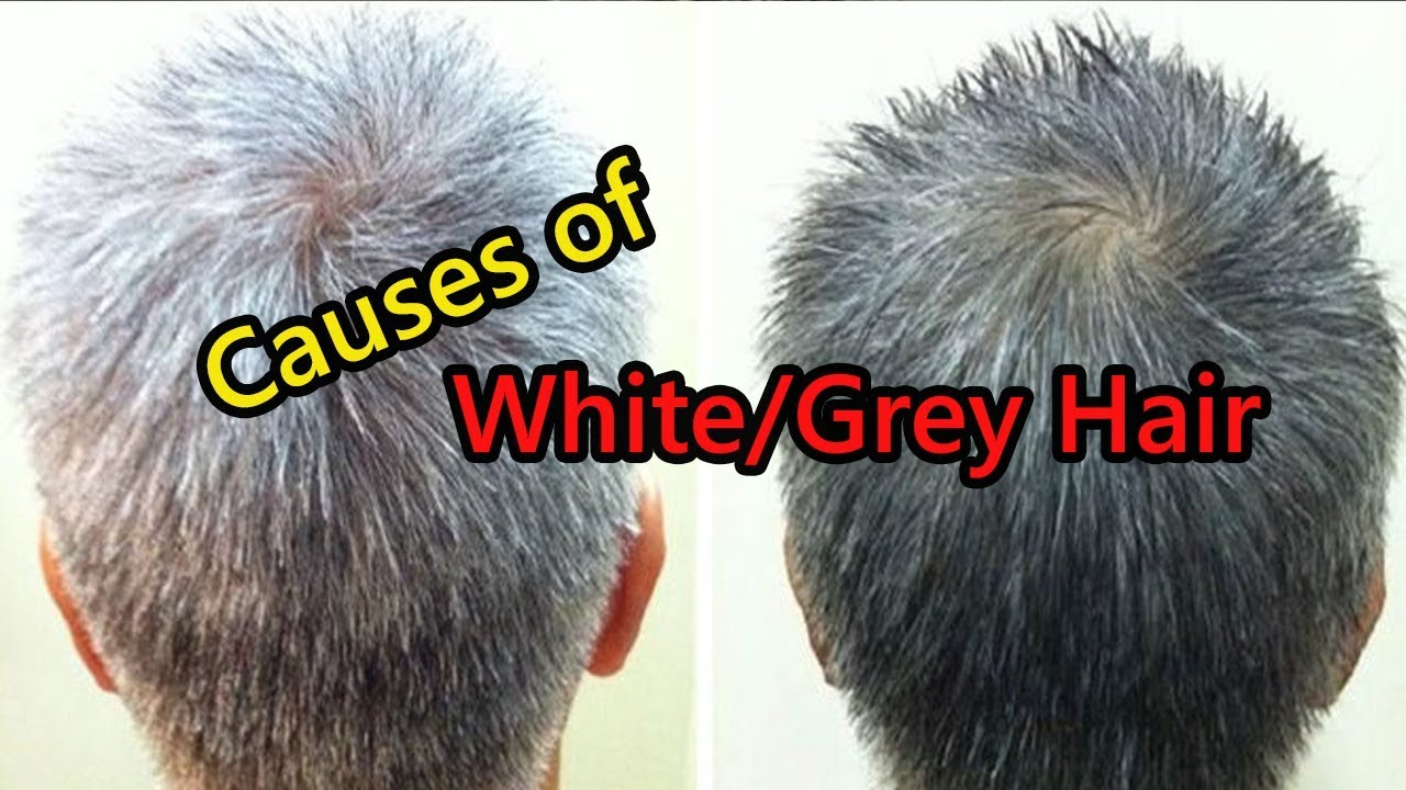 Causes of early gray hair